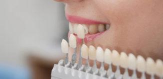 razones, beneficios y ventajas del uso de carillas dentales